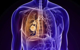 Chronic Obstructive Pulmonary Disease (COPD): Scenario