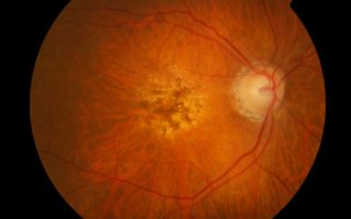 Wet AMD: A chronic eye condition with promising therapies