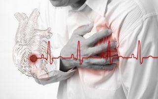 Angina Pectoris: Manifestation of Coronary Artery Disease