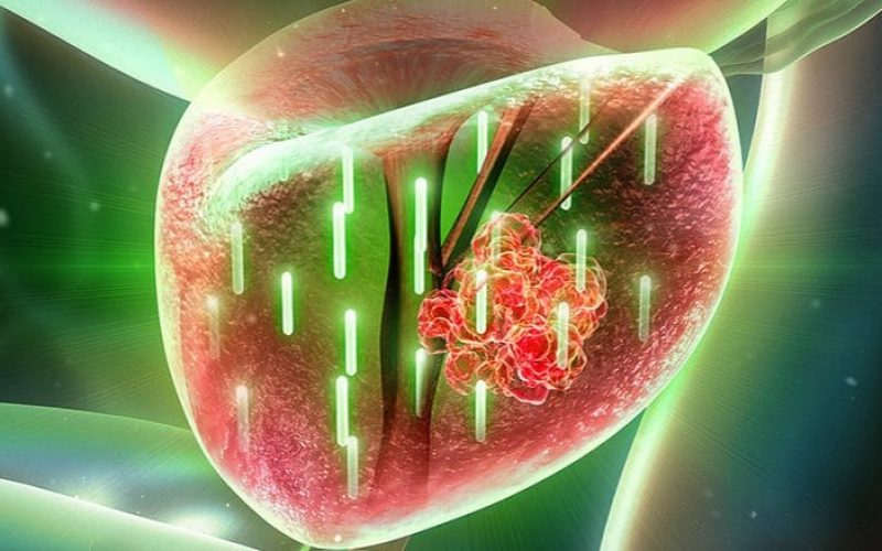 Gold Nanoparticles May Soon Treat Prostate Cancer