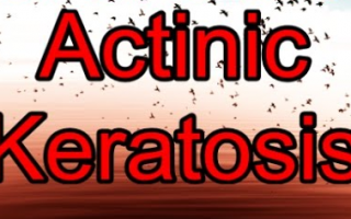 Actinic Keratosis – A Warning Sign for Potential Skin Cancer