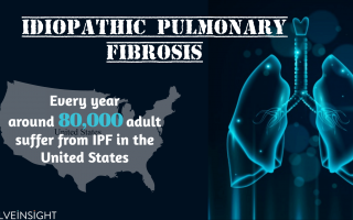 Idiopathic Pulmonary Fibrosis –Scarring For A Lifetime