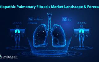 Idiopathic Pulmonary Fibrosis Market Landscape and Forecast