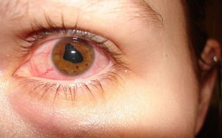 Anterior Uveitis: A vision-threatening condition