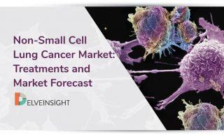 Non-Small Cell Lung Cancer Market: Treatments and Market Forecast
