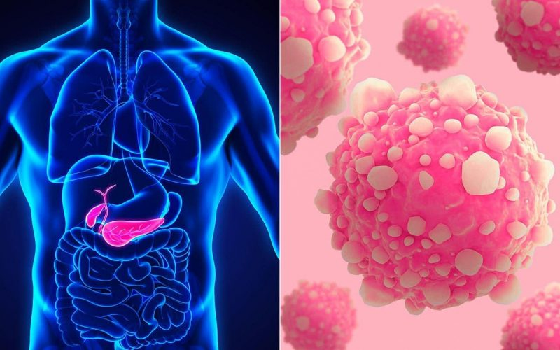 Pancreatic Cancer Treatment to Stride Beyond Chemotherapy