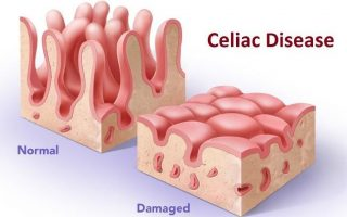 Celiac Disease (CD) – Upcoming therapies to break the stagnancy