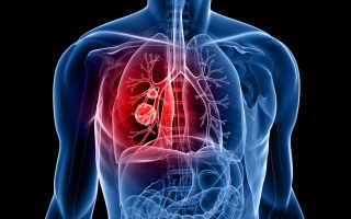 Molecular Profiling Could Help in Early Lung Cancer Detection: Study