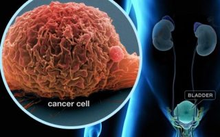 The risk of solid cancer after chemotherapy