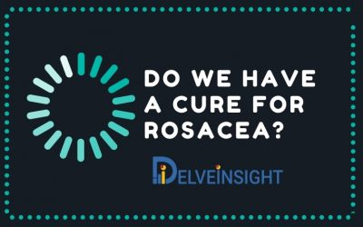 Do We Have A Cure For Rosacea?