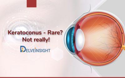 Keratoconus – Rare? Not really!
