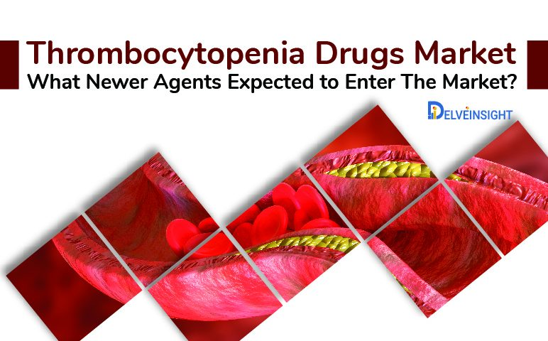 Thrombocytopenia Drugs Market: What Newer Agents Are Expected To Enter The Market?