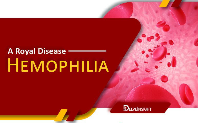 A Royal Disease: Hemophilia