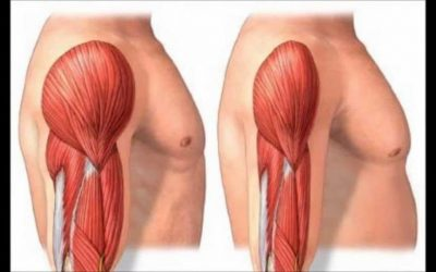 """Sarcopenia: """"Aging-Associated Strength Loss Condition"""""""