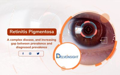 Retinitis Pigmentosa: A complex disease, and the increasing gap b...