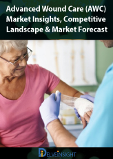 Advanced Wound Care (AWC) -Market Insights, Competitive Landscape and Market Forecast-2025