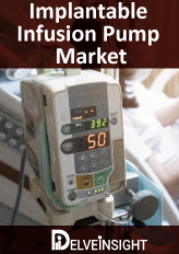 Implantable Infusion Pumps Market Insights, Competitive Landscape and Market Forecast–2026