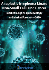 Anaplastic lymphoma kinase Non-Small Cell Lung Cancer (ALK-NSCLC)-Market Insights, Epidemiology and Market Forecast—2030