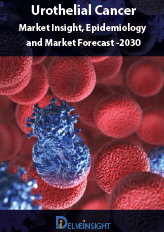 Urothelial Carcinoma- Market Insight, Epidemiology and Market Forecast -2030