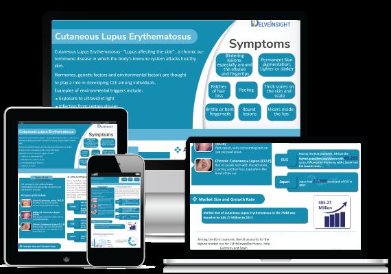 Cutaneous Lupus Erythematosus